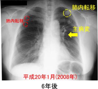 ステージ 4 肺がん