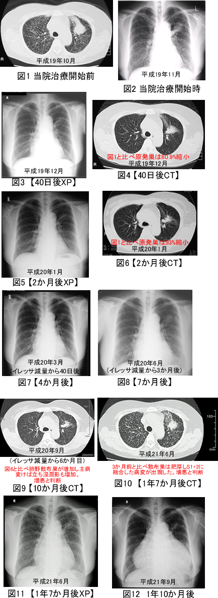 と 肺 原発 性 は 癌 腺